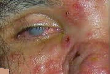 ocular-syphilis